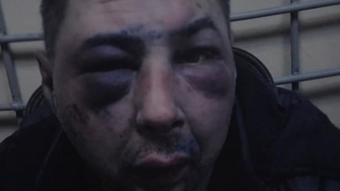 Жертва или преступник: избитый при задержании мужчина оказался убийцей и членом ОПГ